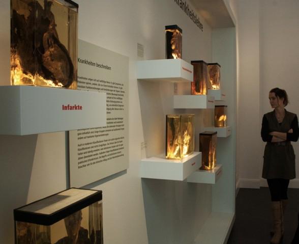 Dauerausstellung Pathologie (1)